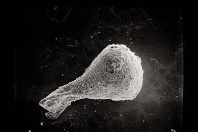 <i><i>Sphaerochitina</i> | Sphaerochitina sp.</i><br />Ruhnu 500 borehole, 344.50 m, Jaagarahu Stage ( 754-479)