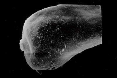<i><i>Conochitina acuminata</i> | Conochitina sp., aff. acuminata</i><br />Ruhnu 500 borehole, 465.40 m, Adavere Stage ( 754-791)