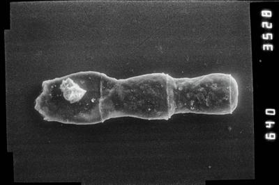 <i><i>Linochitina erratica</i>   Linochitina cf. erratica</i><br />Ventspils D-3 borehole, 710.00 m, Jaagarahu Stage ( 754-799)