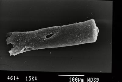 <i><i>Conochitina pachycephala</i></i><br />Gussev 1 borehole, Kaliningrad oblast, 1431.60 m, Paadla Stage ( 754-41)