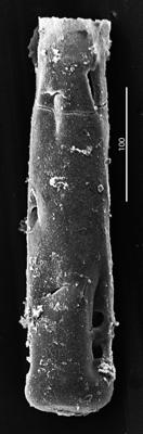 <i><i>Chitinozoa</i> | Conochitina aff. tuba Eisenack, 1932</i><br />Aispute 41 borehole, 974.15 m, lower Silurian ( 345-11)
