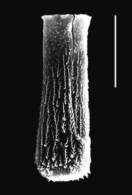 <i><i>Chitinozoa</i> | Hercochitina aff. spinetum Melchin et Legault, 1985</i><br />Piilsi 729 borehole, 103.14 m, Haljala Stage ( 664-7)