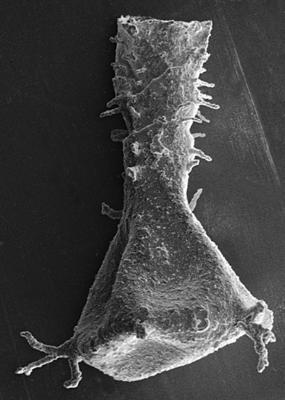<i><i>Ancyrochitina plurispinosa</i></i><br />Ruhnu 500 borehole, 347.40 m, Jaagarahu Stage ( 220-41)