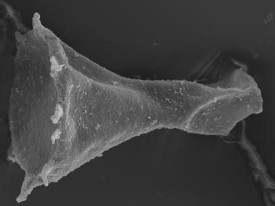 <i><i>Plectochitina pachyderma</i> | Plectochitina cf. pachyderma</i><br />Ohesaare borehole, 162.00 m, Jaagarahu Stage ( 754-335)