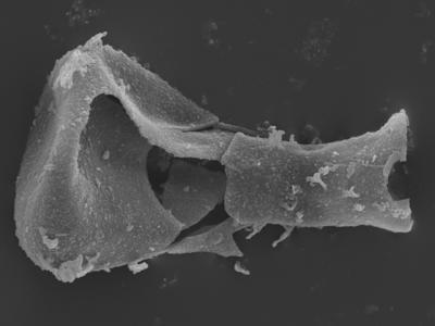 <i><i>Plectochitina</i> | Plectochitina? sp.</i><br />Ohesaare borehole, 143.15 m, Rootsiküla Stage ( 754-370)