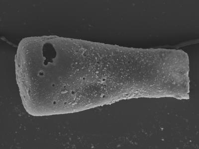 <i><i>Conochitina subcyatha</i></i><br />Kolka 54 borehole, 486.20 m, Jaagarahu Stage ( 754-452)