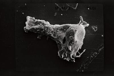 <i><i>Ancyrochitina gutnica</i></i><br />Ruhnu 500 borehole, 347.40 m, Jaagarahu Stage ( 754-555)