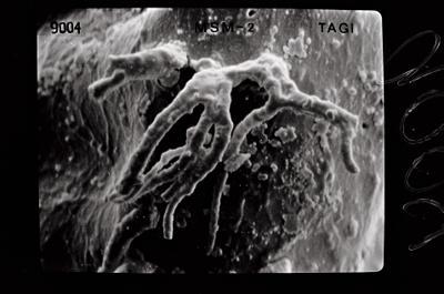 <i><i>Ancyrochitina gutnica</i> | Ancyrochitina gutnica</i><br />Ruhnu 500 borehole, 371.50 m, Jaagarahu Stage ( 754-544)