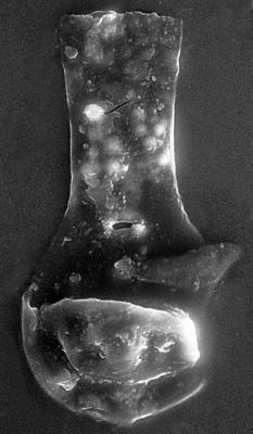 <i><i>Chitinozoa</i> | Angochitina? sp.</i><br />Remte 3 borehole, 946.40 m, Raikküla Stage ( 272-55)