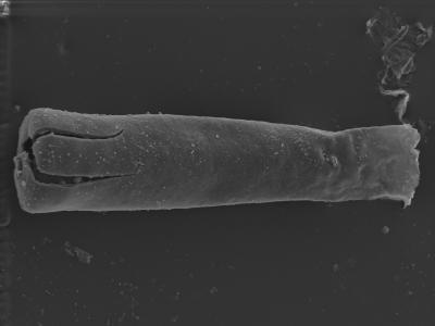 <i><i>Conochitina pachycephala</i></i><br />Kolka 54 borehole, 405.50 m, Jaagarahu Stage ( 754-313)
