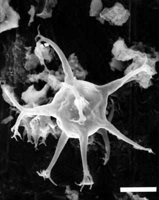 Multiplicisphaeridium fisherii (Cramer, 1968), GIT 344-198