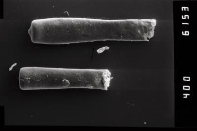 <i><i>Conochitina claviformis</i></i><br />Ohesaare borehole, 68.30 m, Kuressaare Stage ( 754-959)