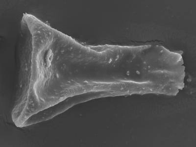 <i><i>Sphaerochitina concava</i></i><br />Ohesaare borehole, 146.95 m, Rootsiküla Stage ( 754-365)