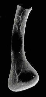 <i><i>Fungochitina fungiformis</i></i><br />Rapla borehole, 95.50 m, Nabala Stage ( 190-10)