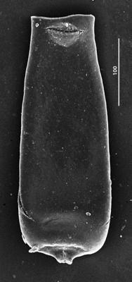 <i><i>Conochitina praeproboscifera</i></i><br />Aispute 41 borehole, 949.00 m, lower Silurian ( 345-25)