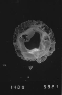 <i><i>Pterochitina perivelata</i></i><br />Dubovskoye borehole, 1257.00 m, Kuressaare Stage ( 754-1142)