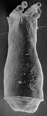 <i><i>Cingulochitina cingulata</i> | Linochitina cingulata (Eisenack, 1937)</i><br />Ohesaare borehole, 247.50 m, Jaagarahu Stage ( 197-18)
