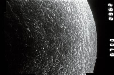 <i><i>Chitinozoa</i></i><br />Ohesaare borehole, 349.40 m, Adavere Stage ( 754-881)