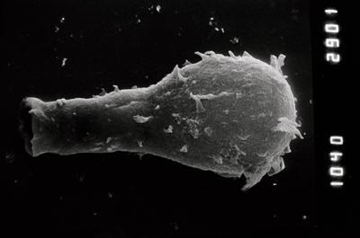 <i><i>Ramochitina angusta</i></i><br />Nagli 106 borehole, 641.20 m, Adavere Stage ( 754-856)