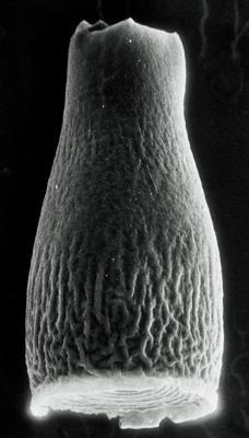 <i><i>Cyathochitina reticulifera</i></i><br />Rapla borehole, 106.60 m, Nabala Stage ( 190-9)