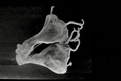 <i><i>Ancyrochitina ancyrea</i> | Ancyrochitina sp. ancyrea</i><br />Ohesaare borehole, 35.70 m, Kaugatuma Stage ( 754-727)