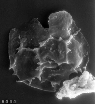 Cymatiogalea sp 1, TUG 1528-45