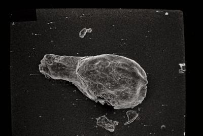 <i><i>Ancyrochitina</i> | Ancyrochitina cf. </i><br />Varbla 502 borehole, 145.20 m, Adavere Stage ( 754-142)
