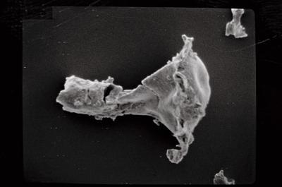 <i><i>Clathrochitina clathrata</i></i><br />Ohesaare borehole, 275.40 m, Jaagarahu Stage ( 754-575)