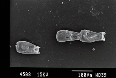 <i><i>Cingulochitina baltica</i> | Cingulochitina baltica?</i><br />Gussev 1 borehole, Kaliningrad oblast, 1478.10 m, Rootsiküla Stage ( 754-7)