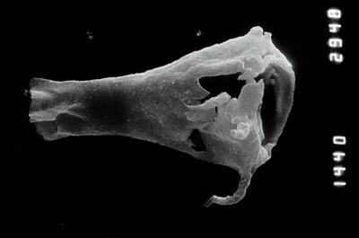<i><i>Plectochitina</i> | Plectochitina aff. nodifera</i><br />Nagli 106 borehole, 676.00 m, Juuru Stage ( 754-877)