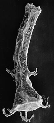 <i><i>Chitinozoa</i> | Ancyrochitina cf. ancyrea (Eisenack, 1931)</i><br />Kipi borehole, 116.80 m, Jaani Stage ( 197-7)