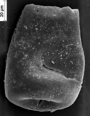 <i><i>Bursachitina</i> | Bursachitina sp. 2 Nestor et Nestor, 2002</i><br />Staicele 4 borehole, 247.80 m, Jaagarahu Stage ( 350-22)