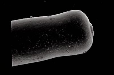 <i><i>Conochitina proboscifera</i> | Conochitina aff. proboscifera</i><br />Häädemeeste 172 borehole, 232.40 m, Raikküla Stage ( 754-628)