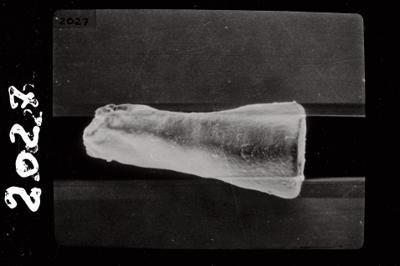 <i><i>Conochitina linearistriata</i> | Conochitina cf. linearistriata</i><br />Ohesaare borehole, 210.40 m, Jaagarahu Stage ( 754-770)