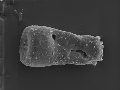 <i><i>Conochitina subcyatha</i></i><br />Pavilosta 51 borehole, 852.00 m, Paadla Stage ( 754-299)