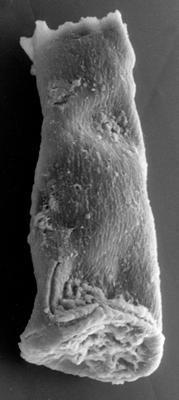 <i><i>Chitinozoa</i> | Conochitina? sp. 3 Nestor, 1984</i><br />Kirikuküla borehole, 25.60 m, Adavere Stage ( 223-23)
