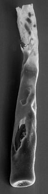 <i><i>Chitinozoa</i> | Conochitina sp. 4  Nestor, 1994</i><br />Varbla 502 borehole, 149.85 m, Adavere Stage ( 272-140)