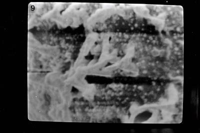 <i><i>Conochitina</i> | Conochitina aff. iklaensis Nestor, 1980</i><br />Severnaya Zemlya, October Revolution Island, Ushakov River,  m, Llandovery ( 754-828)