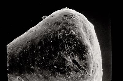<i><i>Sphaerochitina</i> | Sphaerochitina sp.</i><br />Ruhnu 500 borehole, 371.50 m, Jaagarahu Stage ( 754-478)