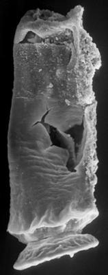 <i><i>Chitinozoa</i> | Cyathochitina? sp.</i><br />Ohesaare borehole, 441.50 m, Juuru Stage ( 197-12)
