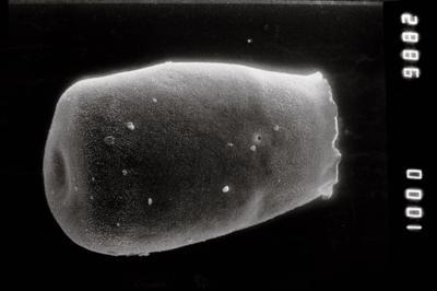 <i><i>Eisenackitina dolioliformis</i></i><br />Jaagarahu borehole, 41.70 m, Jaani Stage ( 754-166)