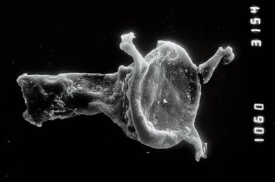 <i><i>Ancyrochitina</i> | Ancyrochitina aff. ancyrea</i><br />Viki borehole, 149.40 m, Adavere Stage ( 754-936)