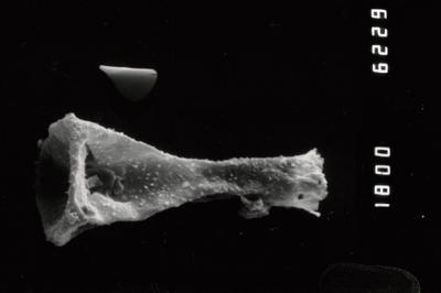 <i><i>Ancyrochitina</i> | Ancyrochitina sp.</i><br />Ohesaare borehole, 112.60 m, Paadla Stage ( 754-996)