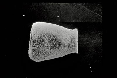 <i><i>Eisenackitina lagenomorpha</i></i><br />Kaugatuma 509 borehole, 51.40 m, Kuressaare Stage ( 754-718)