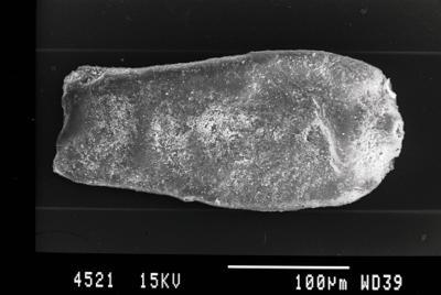 <i><i>Cingulochitina crassa</i> | Cingulochitina crassa?</i><br />Gussev 1 borehole, Kaliningrad oblast, 1467.80 m, Rootsiküla Stage ( 754-22)