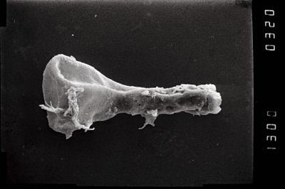 <i><i>Ancyrochitina</i>   Ancyrochitina cf. gutnica</i><br />Ohesaare borehole, 194.00 m, Jaagarahu Stage ( 754-1071)