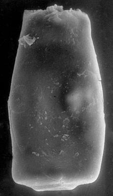 <i><i>Chitinozoa</i> | Conochitina sp. 2 Nestor, 1994</i><br />Pulli 2 borehole, 59.80 m, Adavere Stage ( 272-136)