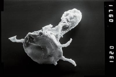 <i><i>Plectochitina</i> | Plectochitina cf. nodifera</i><br />Viki borehole, 238.90 m, Juuru Stage ( 754-1050)