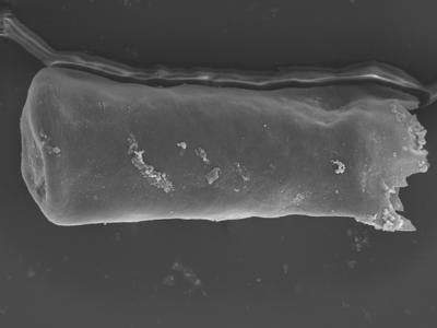 <i><i>Conochitina argillophila</i> | Conochitina aff. argillophila</i><br />Ohesaare borehole, 164.25 m, Jaagarahu Stage ( 754-322)