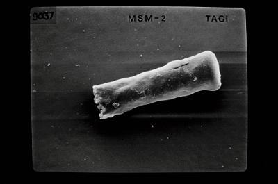 <i><i>Conochitina argillophila</i> | Conochitina cf. argillophila</i><br />Ikla borehole, 185.50 m, Jaagarahu Stage ( 754-653)